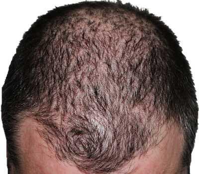 Androgenetic alopecia - Pattern Baldness